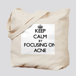 Keep Calm by focusing on Acne Tote Bag