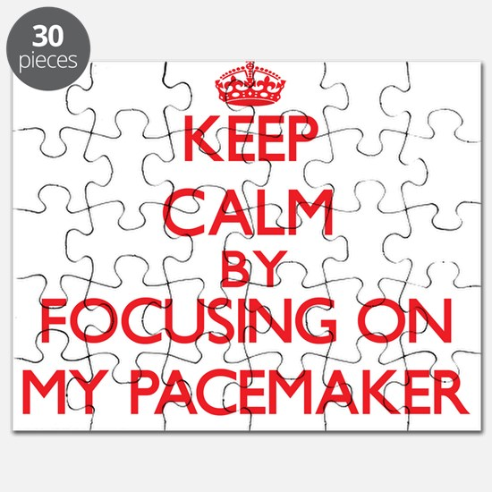 Keep Calm by focusing on My Pacemaker Puzzle