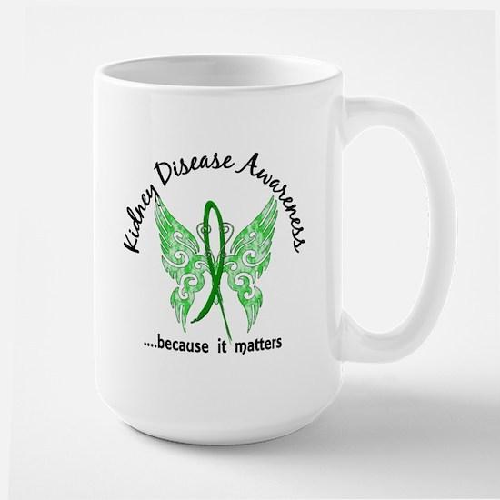 Kidney Disease Butterfly 6.1 Large Mug