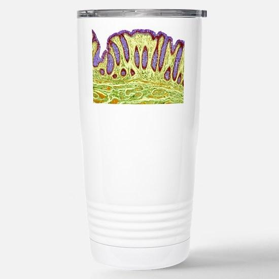 Colon lining, light micrograph Mugs
