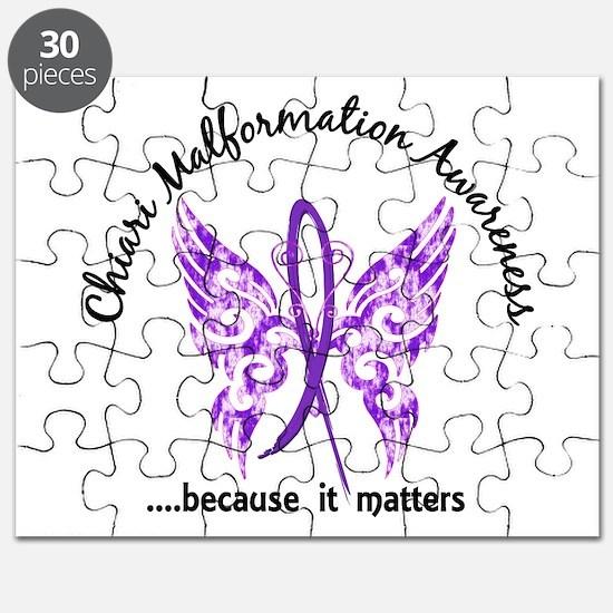 Chiari Butterfly 6.1 Puzzle