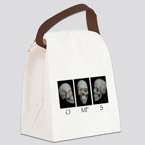 OMFS surgery skull Canvas Lunch Bag