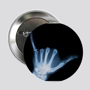 "Shaka Hand Sign X-ray ALOHA 2.25"" Button"