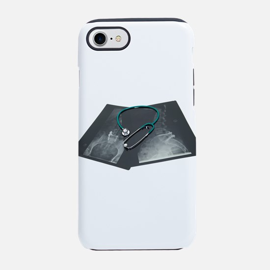 XRayConsult061209.png iPhone 7 Tough Case