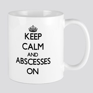 Keep Calm and Abscesses ON Mugs