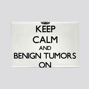 Keep Calm and Benign Tumors ON Magnets