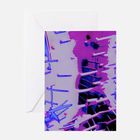 True Abstraction Greeting Cards