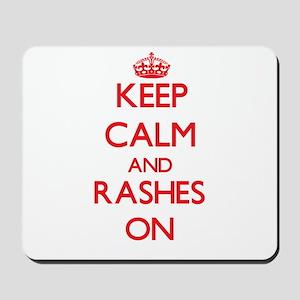 Keep Calm and Rashes ON Mousepad