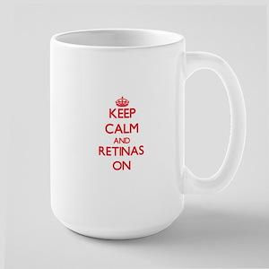 Keep Calm and Retinas ON Mugs