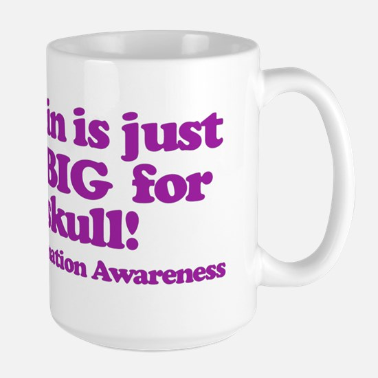 Chiari Malformation Awareness - Brain Mugs