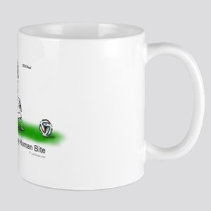 Y04.1 Assault by human bite Mugs