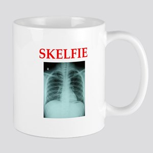 RADIOLOGY JOKE Mugs
