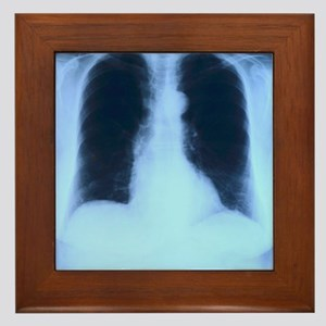 X-Ray Lungs Framed Tile