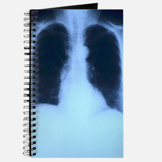 X-Ray Lungs Journal