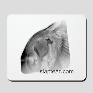 slaptear MRI mousepad