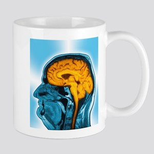 Normal brain, MRI scan Stainless Steel Travel Mugs