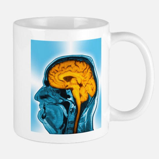 Normal brain, MRI scan Stainless Steel Travel Mugs