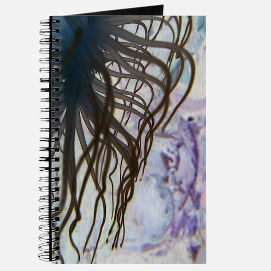 """Anenome in Negative"" Journal"