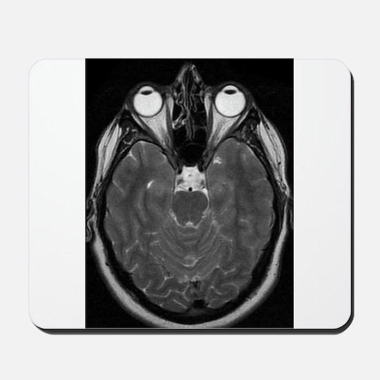 MRI Mousepad