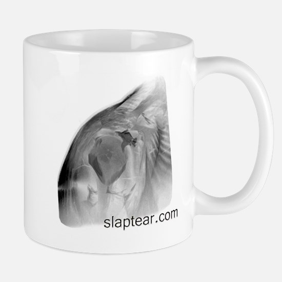 Cute Rotator cuff Mug