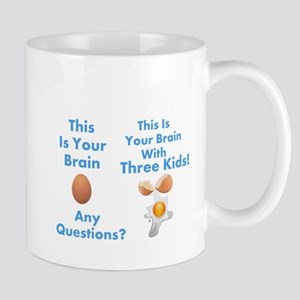 This is your brain humor Mugs