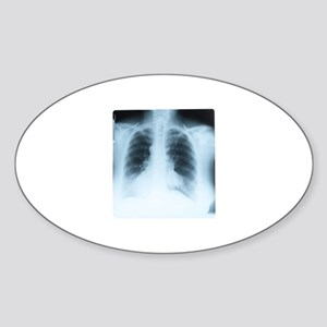 Chest X-ray bones Oval Sticker