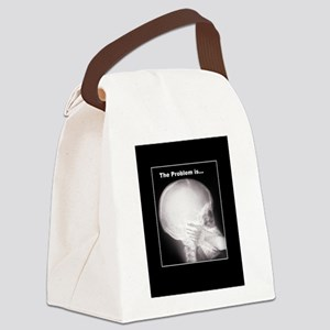 foot in mouth xray Canvas Lunch Bag
