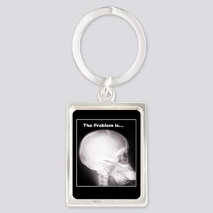 foot in mouth xray Keychains