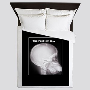 foot in mouth xray Queen Duvet