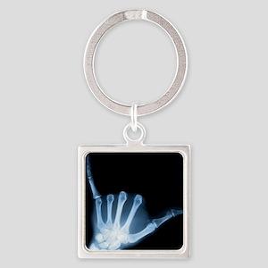 Shaka Hand Sign X-ray ALOHA Keychains