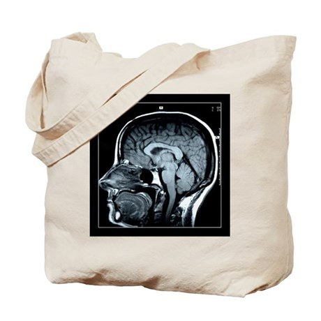 Get your Head Examined XRay Tote Bag