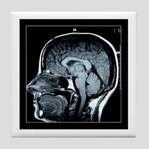 Get your Head Examined XRay Tile Coaster