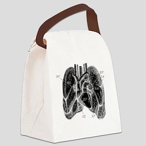 Heart Diagram Canvas Lunch Bag