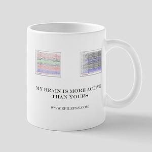 EEG Epilepsy Mugs