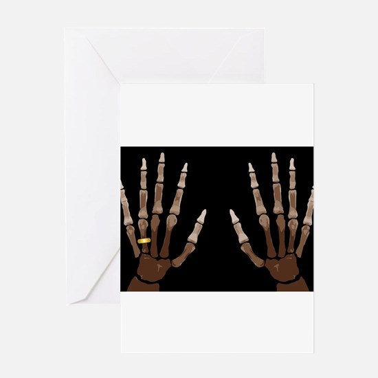 Hand Bones Greeting Cards