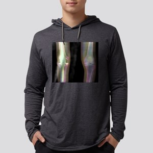 Knee replacement, X-ray Long Sleeve T-Shirt