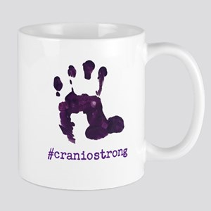#craniostrong Mugs