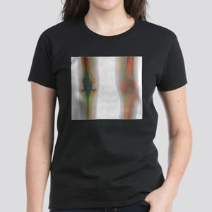 Knee replacement, X-ray T-Shirt