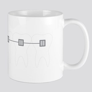 Orthodontist Braces Mugs