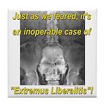Extremus Liberalitis Tile Coaster