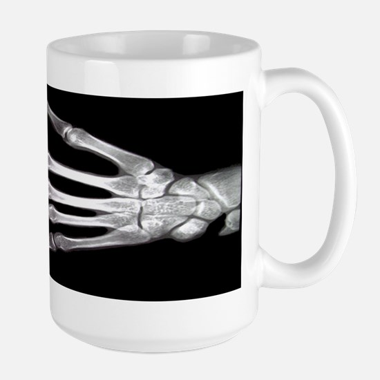 Hand X-Ray LARGE Mug (Radiology)