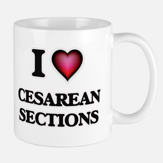 I love Cesarean Sections Mugs