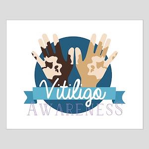 Vitiligo Awareness Posters