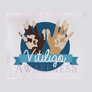 Vitiligo Awareness Throw Blanket