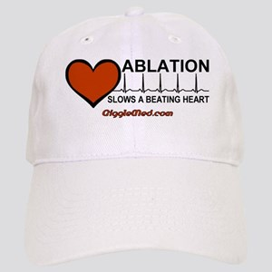 Ablation Slows Beating HeartT Cap