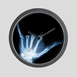 Shaka Hand Sign X-ray ALOHA Wall Clock