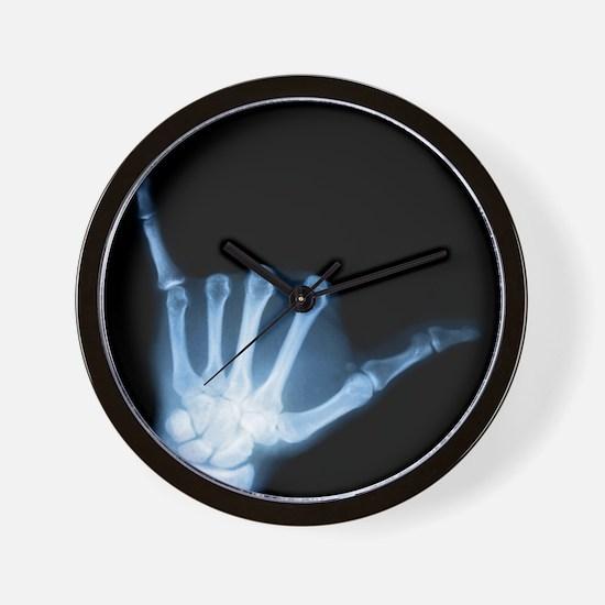 Shaka Hand Sign X-ray ALOHA Wall Clock