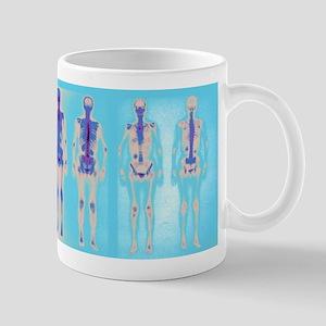 Radiology Large Mugs