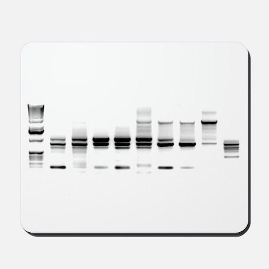 DNA Gel B/W Mousepad