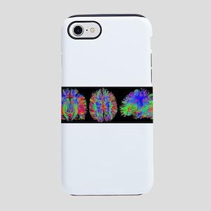 Rainbow Brain Scans iPhone 8/7 Tough Case